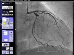 Interventional Cardiology Software Services