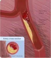 Heart Blocks/Heart Problems Treatment