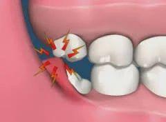 yirmilik diş tedavisi
