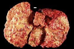 Hydatid Cysts of The Liver