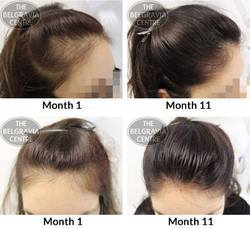 Stem Cell Hair Regrowth Spa Services