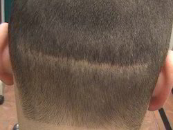 Follicular Unit Hair Transplant Service