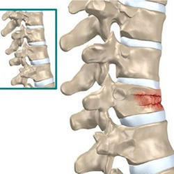 Fracture Spine