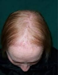 Hair Loss Disorders Therapy