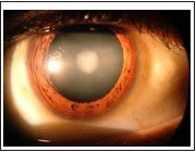 Cataract Surgery And Phaco