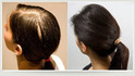 Intensive Root Treatment