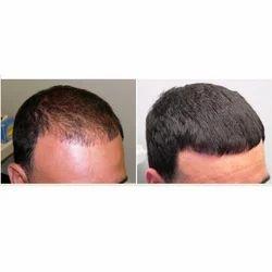 Hair Regrowth Treatment