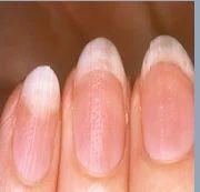 Nail Problems  Manegment