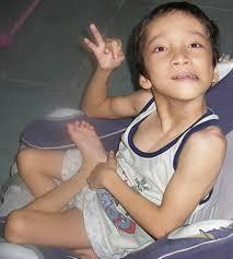 Cellebral Palsy  Physiotherapy Center