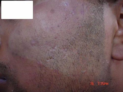 Parisa Skin Cosmetic Amp Laser Center Service Provider Of