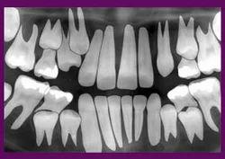 Serial Extraction Dental Clinical Equipments ड टल इक व पम ट ड टल इक व पम ट द त च क त स क उपकरण In Satna Hi Tech Dental Clinic Id 6635239555