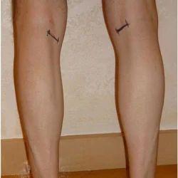 Calf Augmentation surgery