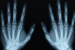 X-Ray Services