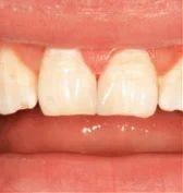 Mouth Rehabilitation Treatment Service