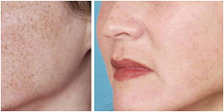 Photo Facial Skin Treatment Solution