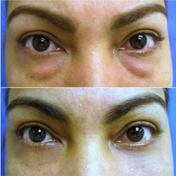 Eyelid Surgery In India