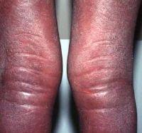Eosinophilia Treatment