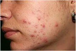 Skin Treatments - Birthmarks, Tatoo Removal & Warts (Radiosurgery