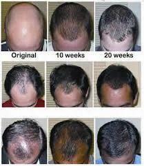 hair loss treatment in chennai