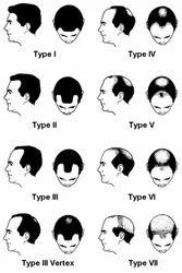 Male Pattern Baldness (Androgenic Alopecia)