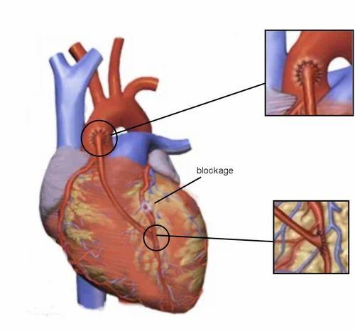 surgery adult heart