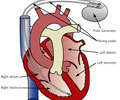 Pacemaker Treatment