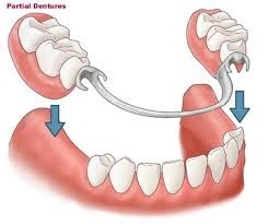 Fixed & Removable Dentures Pune