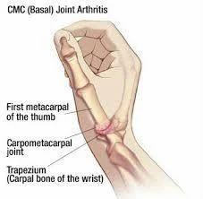 Arthroscopy & Arthroplasty