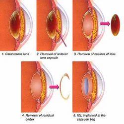 Cataract Surgery Eye Treatment