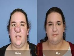 Plastic Surgery Of The Face And Nose