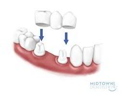 Dental Bridges Services