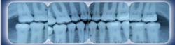 Dental X-Rays Center