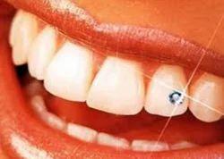 5711f447e Teeth Jewellery in Delhi, टीथ ज्वेलरी, दिल्ली, Delhi ...