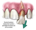 Management Of Fractured / Avulsed Teeth