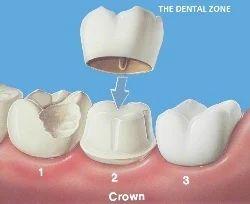 Crowns (Cap)