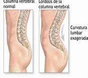Spine Disorder