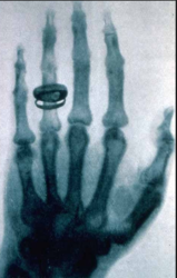 Mobile Health Exam & X-Ray Services