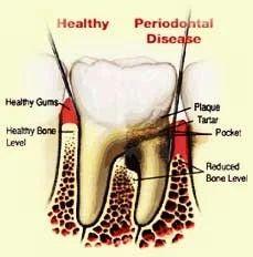 Periodontics Treatment Services