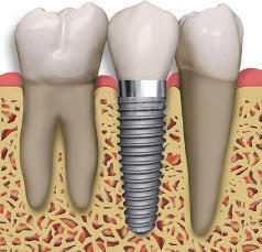 Artificial Tooth Replacement