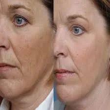 Skin Rejuvenation Service