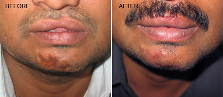 Face Surgery - Hair Restoration Service Provider from Coimbatore