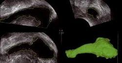 Sono AVC Ultrasound Services