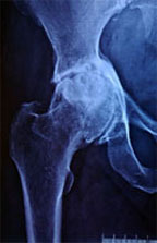 Hip Joint Medical Treatment Service