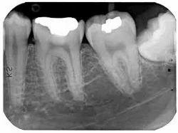 Dental X-Ray Services