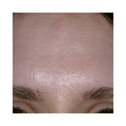 Acne Scars and Skin Rejuvenation with Derma Roller