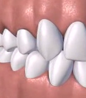 Periodontal Surgery Treatment Service
