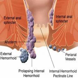 Piles Ayurvedic treatment