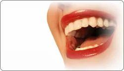 Oral Care Dental Treatment