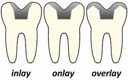 Inlay,Onlay & Overlay