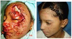 Craniomaxillofacial Surgeries
